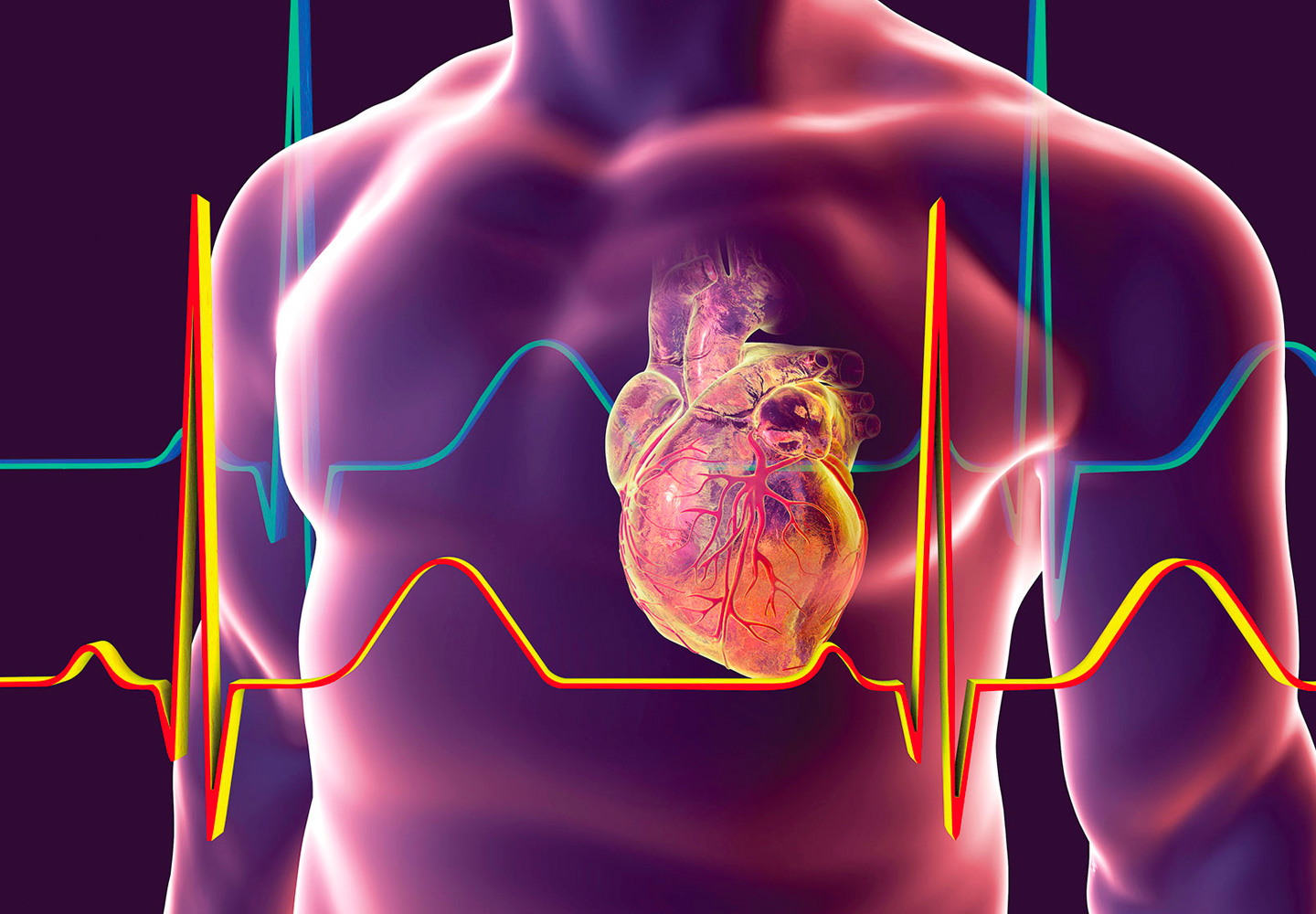 SGLT2 inhibitors in patients with heart failure with reduced ejection fraction: a meta-analysis of the EMPEROR-Reduced and DAPA-HF trials