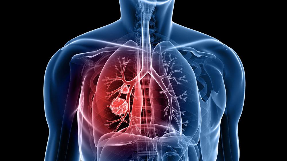 Vital capacity and COPD: the swedish CardioPulmonary bioImage study (sCaPIs)