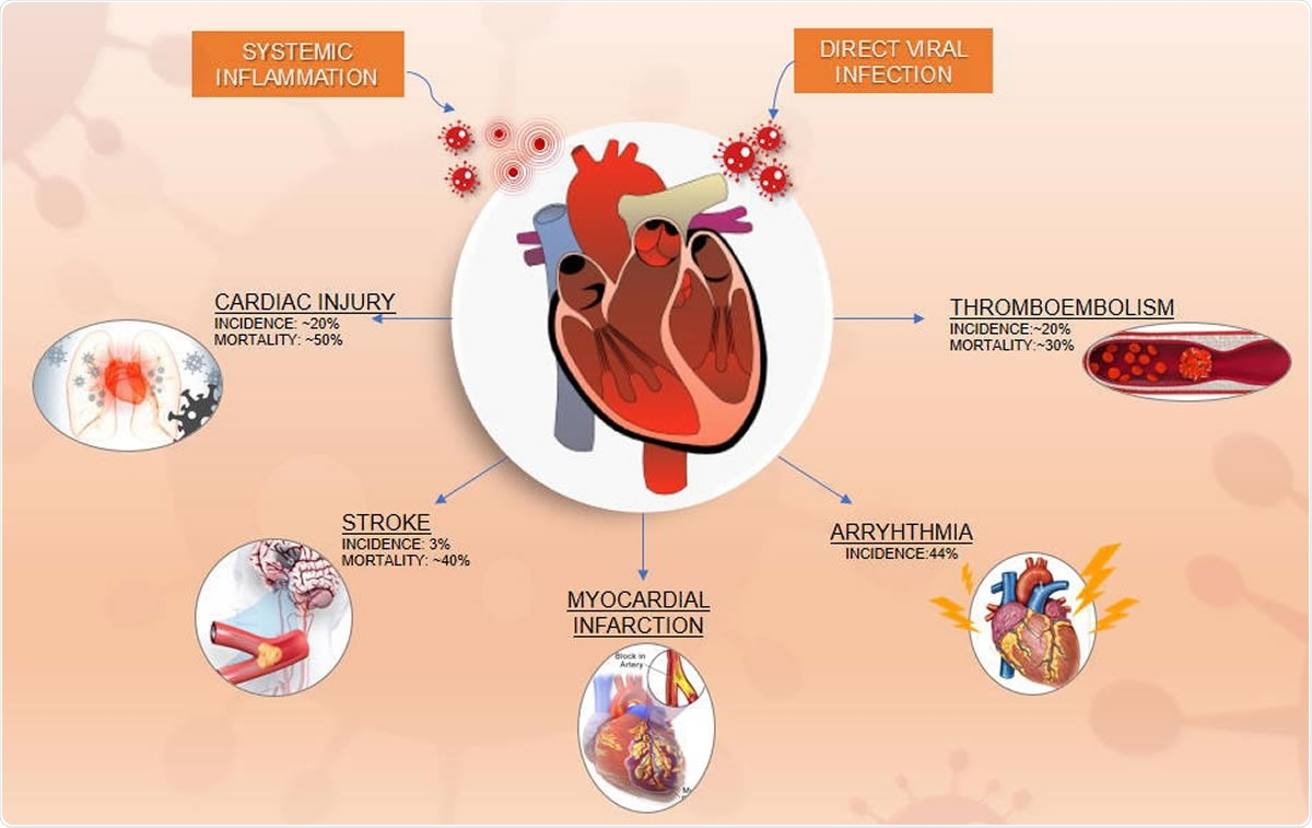 Clinical Trials for Vascular Complications of COVID-19: An Overview