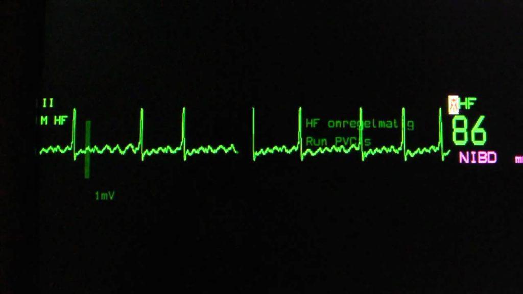 Enhanced Monitoring For Atrial Fibrilation Following Cardiac Surgery