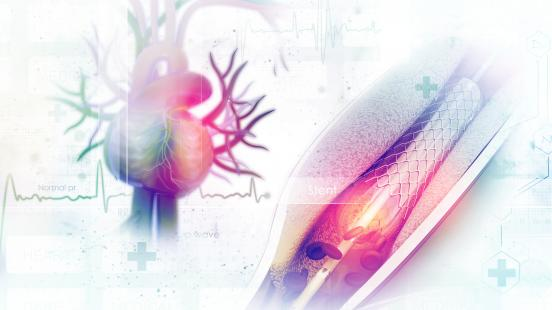 Registry of Arterial and Venous Thromboembolic Complications in Patients With COVID-19
