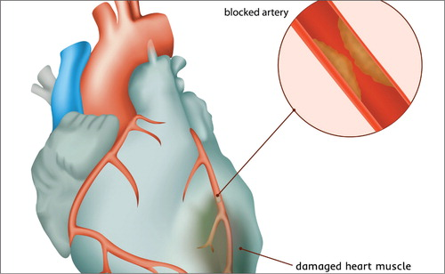 Myocardial Infarction with Nonobstructive Coronary Arteries (MINOCA): A Review of the Current Position
